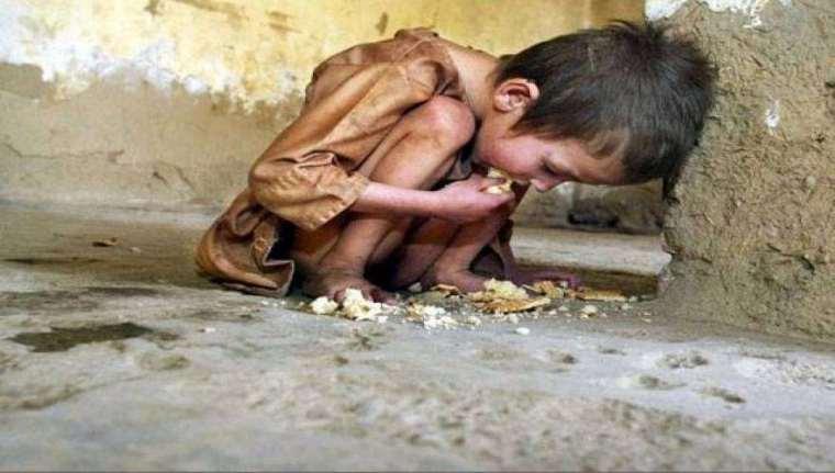 hungry child-Yemen