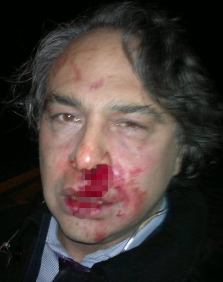 Barbaros Santal-beaten1